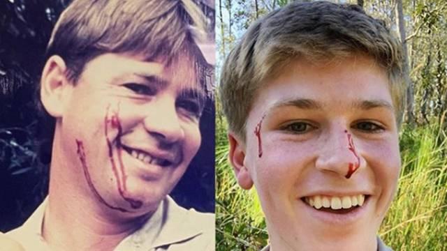 Sina (16) pokojnog lovca na krokodile ugrizla zmija: 'Isti ste'