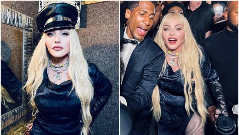 Madonna šokirala obožavatelje, 'zaleđeno' lice je prepuno filera