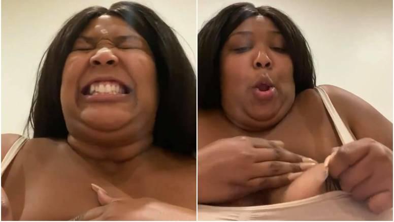 Lizzo jadikuje: Ne mogu skinuti flaster s bradavice, jako me boli