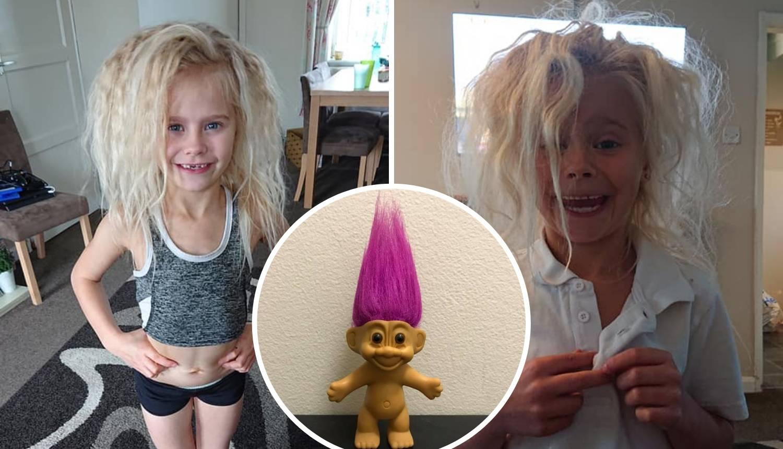 Sindrom ukočene kose: Izgleda kao trol - kosa joj stalno strši