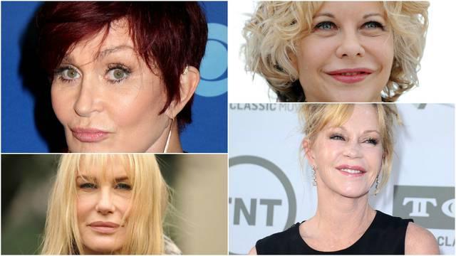 Bez potrebe: Zvijezde koje su si botoksom skoro uništile lica