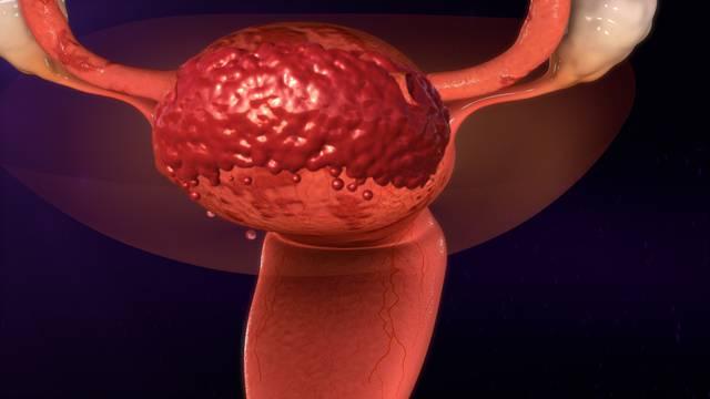 Kod visokih i vitkih cura veća vjerojatnost za endometriozu