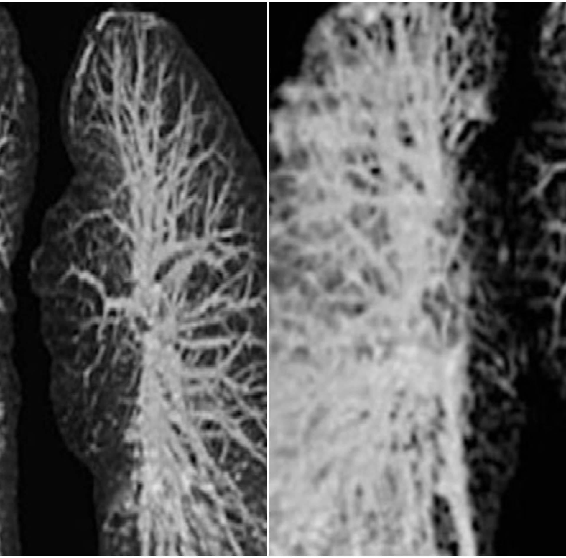 Rendgenske snimke pluća