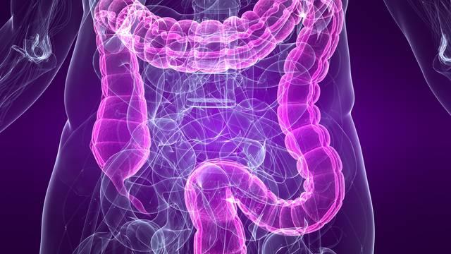 Prepoznajte podmukle znakove raka debelog crijeva na vrijeme
