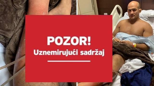 Dos Santos fotografirao nogu: Infekcija nije djelovala ozbiljno