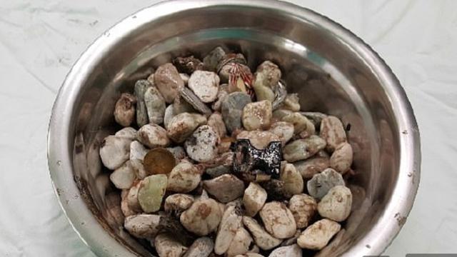 Iz trbuha su mu izvadili 2 kg novčića: Jeo ih je 'da se smiri'