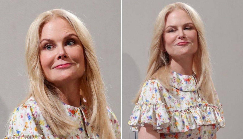Pretjerala s popravcima: Nicole u 53. godini bez ijedne bore...
