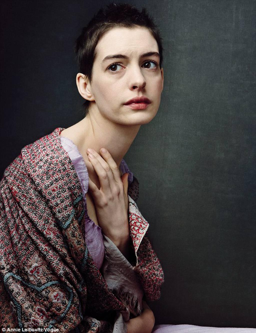 Anne Hathaway: Nisam jela 13 dana samo da jako smršavim