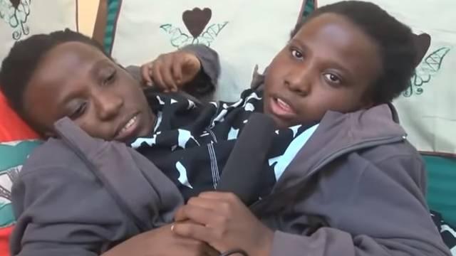 Umrle su sijamske blizanke: 'Počivajte u miru, djeco moja'