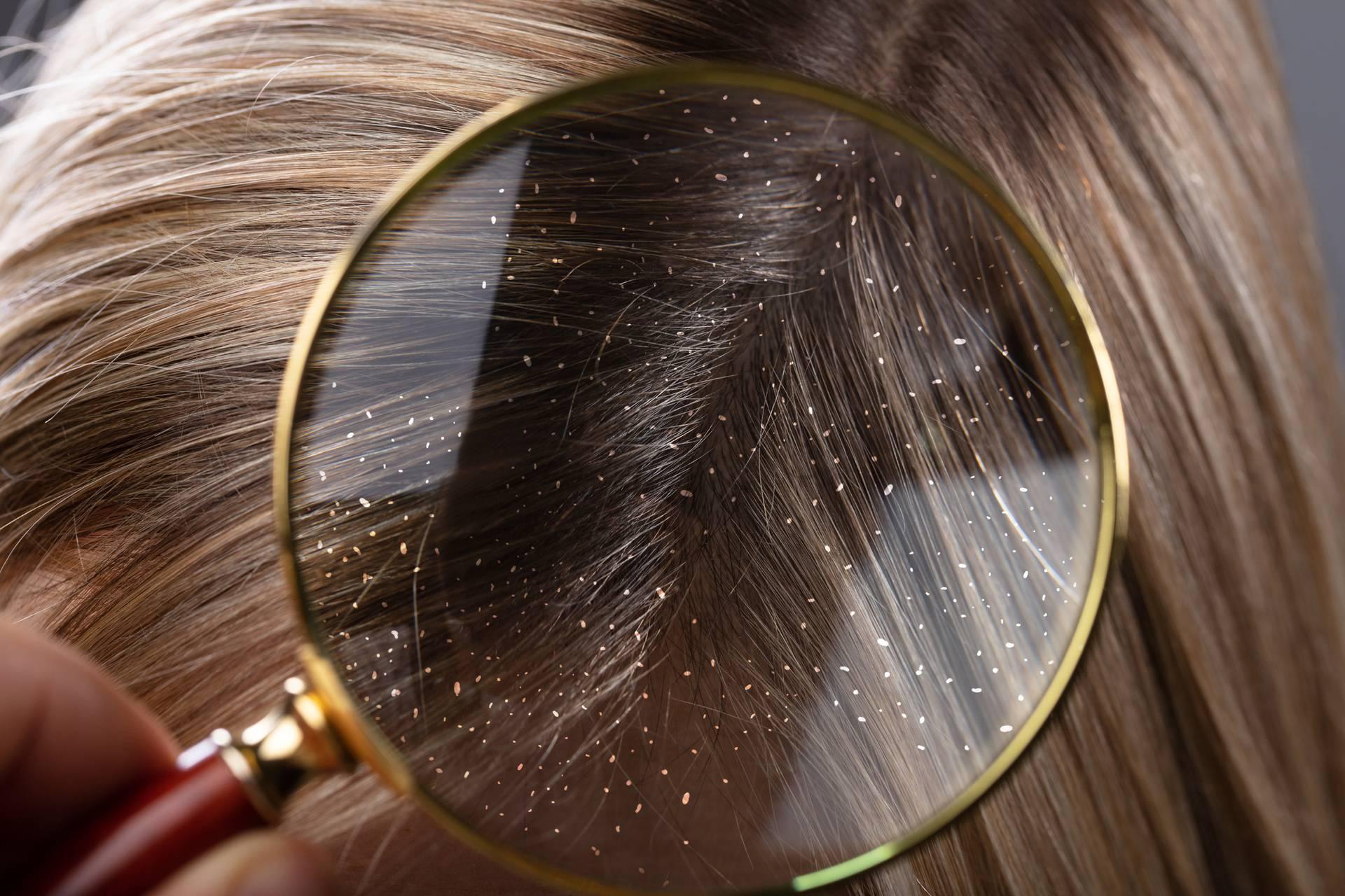 Dermatolog: Perut treba liječiti, jer može izazvati ispadanje kose