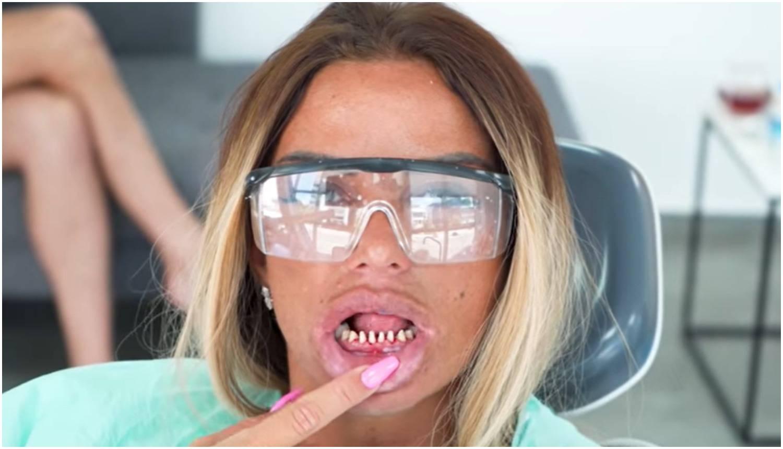 Katie u Turskoj sredila zube: 'Išla si na odmor operirati se?'
