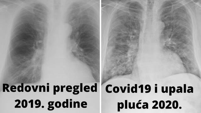 Covid je Hrvatu uništio zdrava pluća: 'Prošle godine su bila čista. Posljedice će biti trajne'