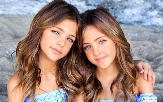 Upoznajte Avu i Leah (9): Jesu li ovo najljepše blizanke svijeta