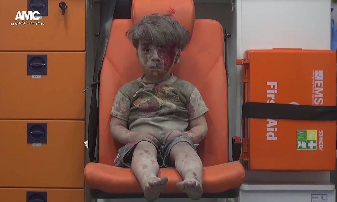 Prizor koji slama srce:  Ranjeni dječak postao je simbol Alepa