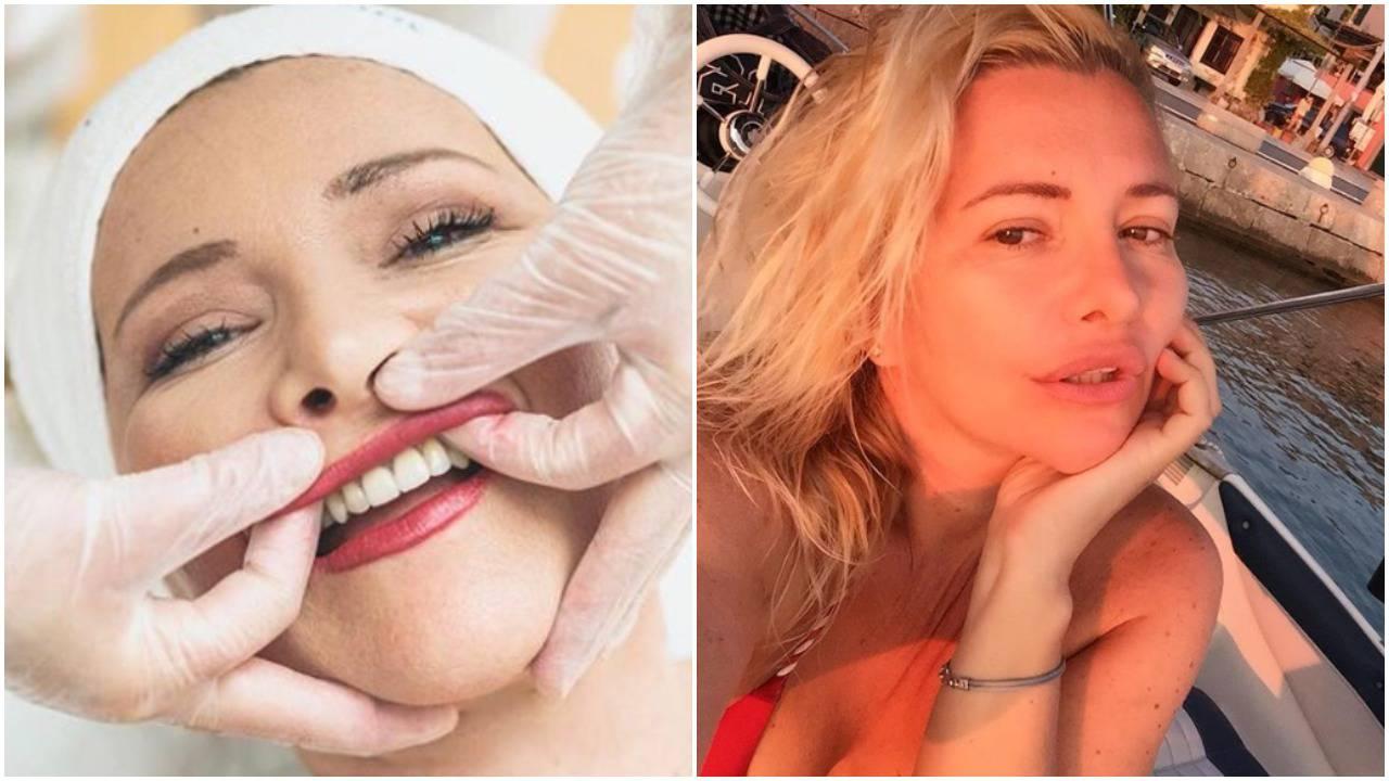Mehunka ispeglala lice: Na ovaj tretman ide i Angelina Jolie...
