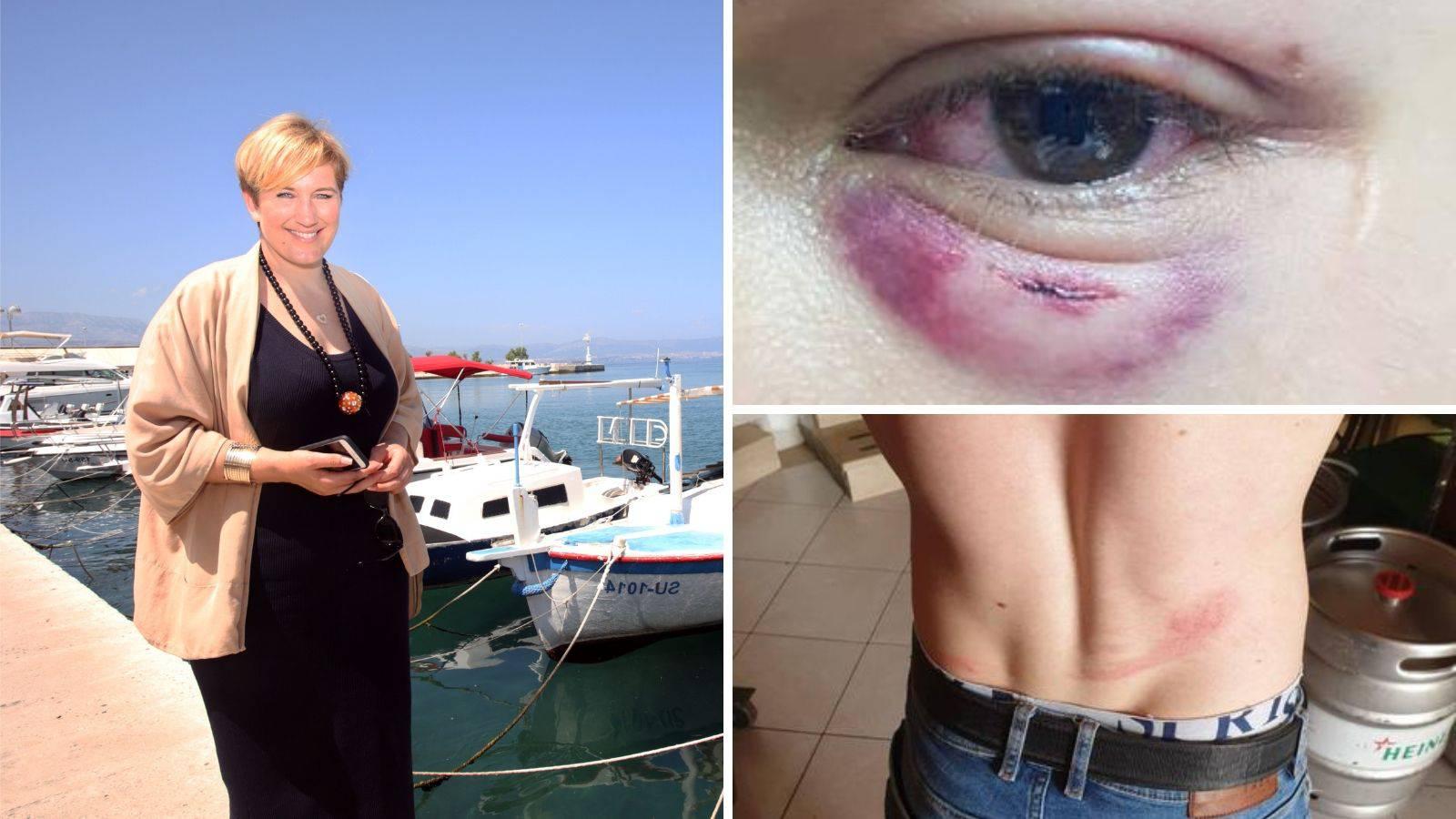 Žena koja je rekla ne ustašama i huliganima: Osuđujem napad!