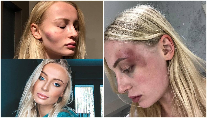 Manekenka je objavila modrice koje joj je nanio dečko: 'Tuga i bol, izlazim jača iz ove veze...'