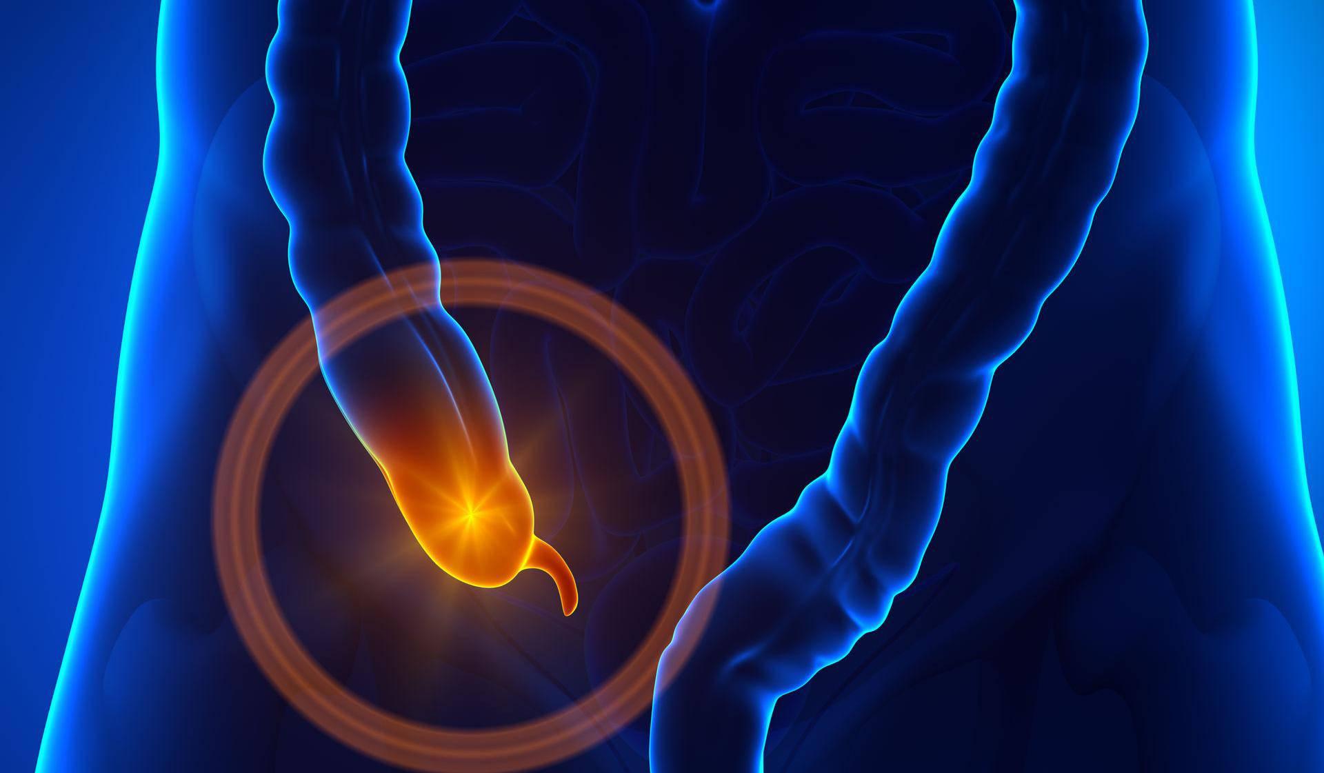 Ne ignorirajte upalu slijepog crijeva - možete dobiti sepsu...