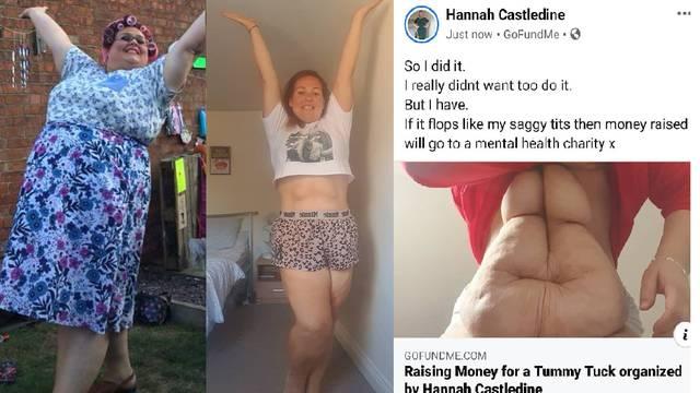 Ozbiljno je shvatila upozorenje liječnika, skinula 63 kg, ali sad joj je ostalo 7 kg viseće kože
