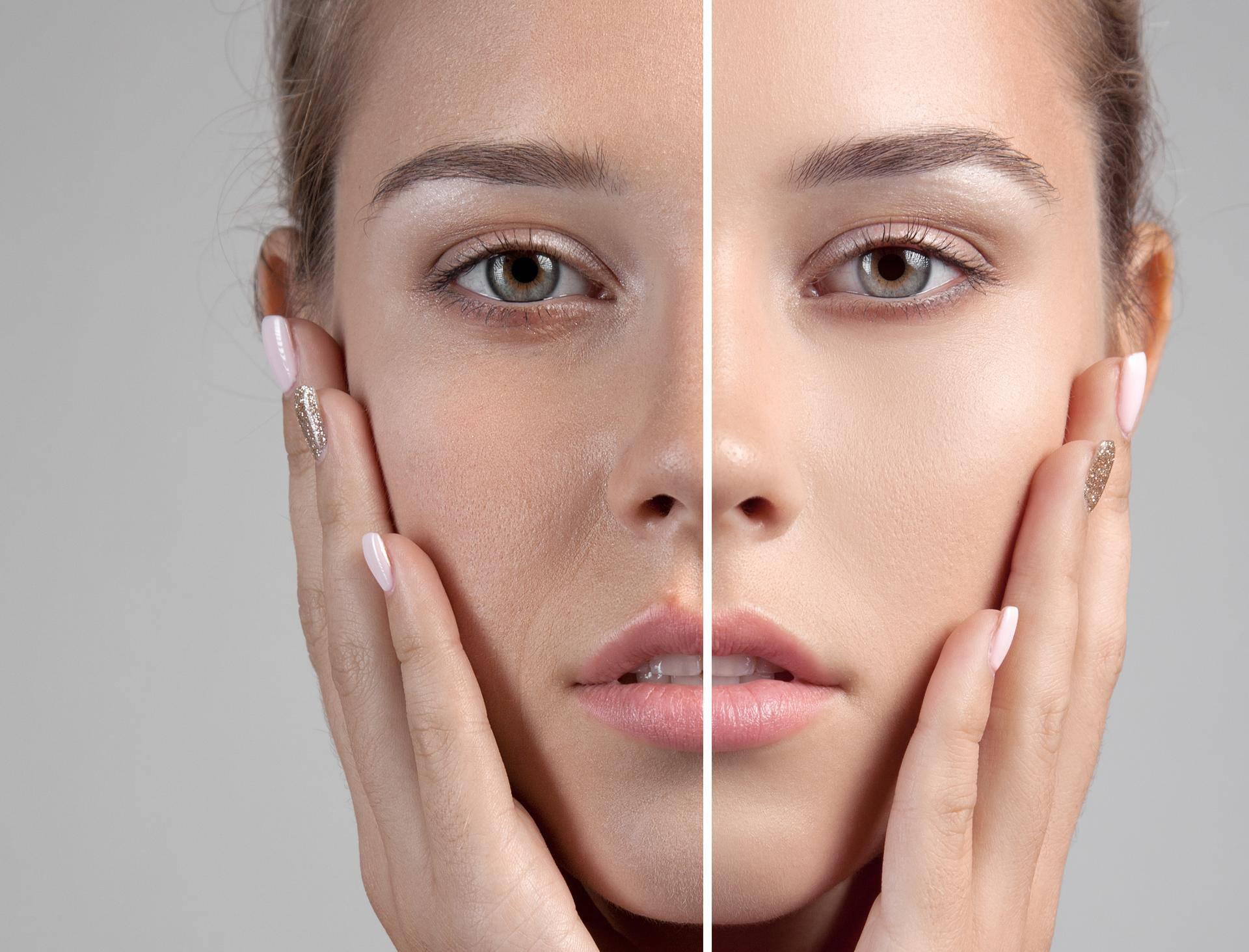 Začepljene pore mogu se javiti i zbog sedam nezdravih navika
