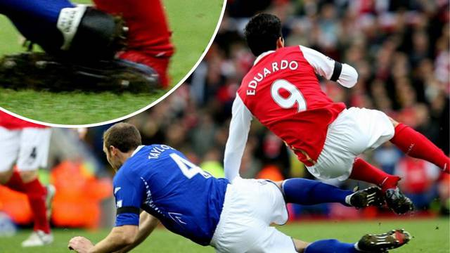 Eduardo zna kako je Llorisu: Pukla je kost i ligamenti noge