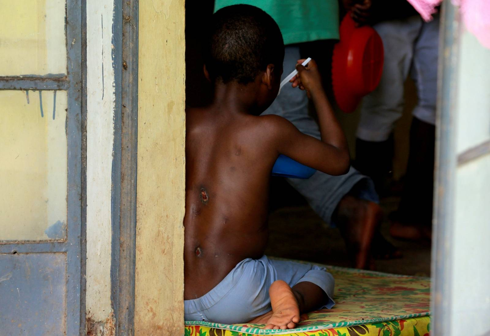 One of the children rescued by police, with bruises on his back, eats at the Hajj transit camp in Kaduna