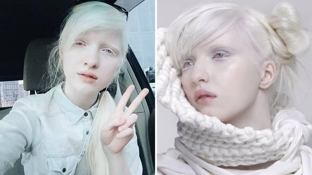 Eterična princeza: Model Nastya Zhidkova najpoznatija je albino djevojka u svijetu manekenstva