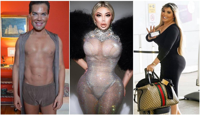 Bivši 'ljudski Ken': 'Muškarci vide da sam transrodna žena. Preplaše se, a nekima je fetiš'