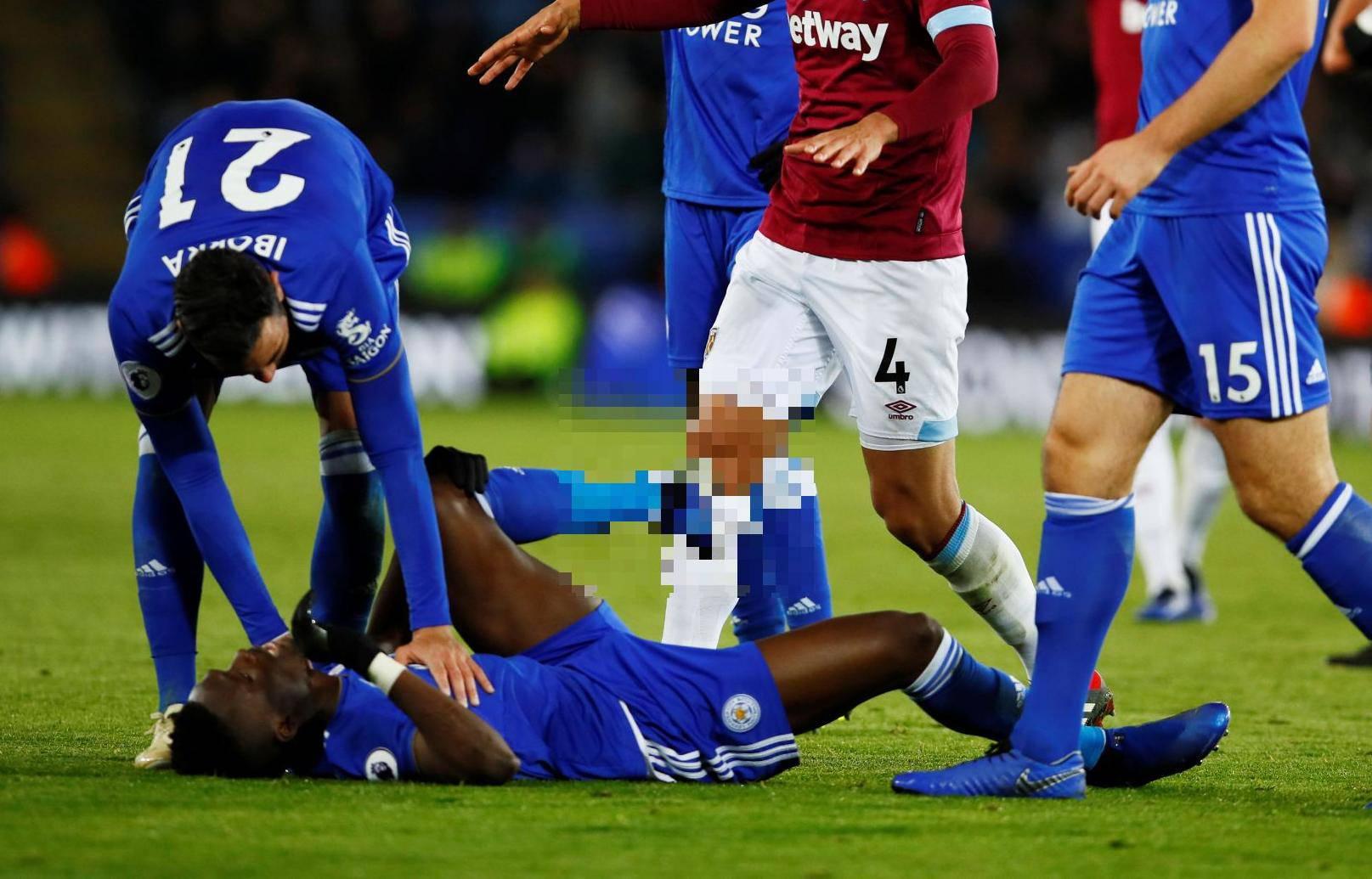 Uznemirujuće! Igrač Leicestera slomio je gležanj kao Eduardo