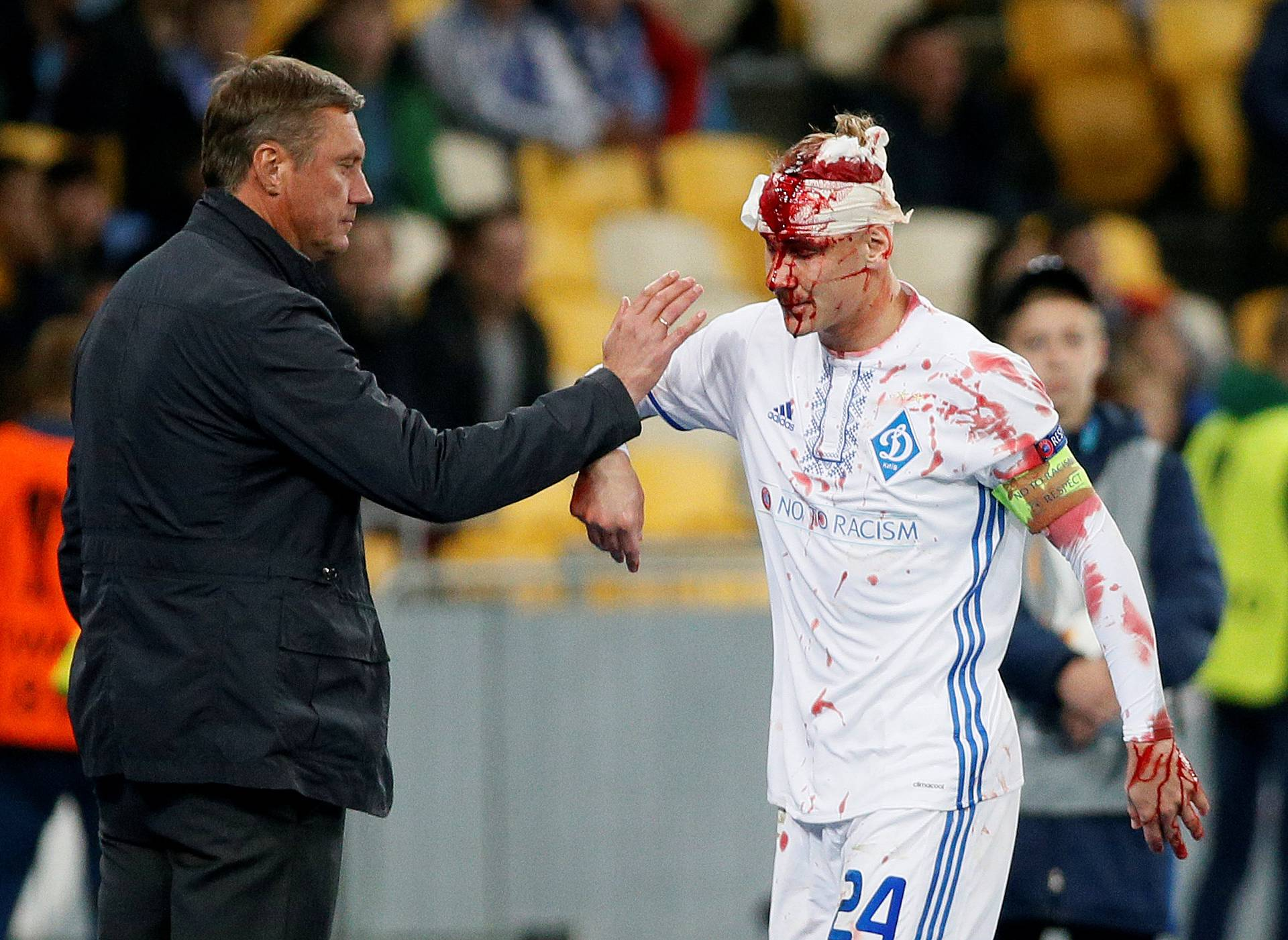 Europa League - Dynamo Kyiv vs Young Boys