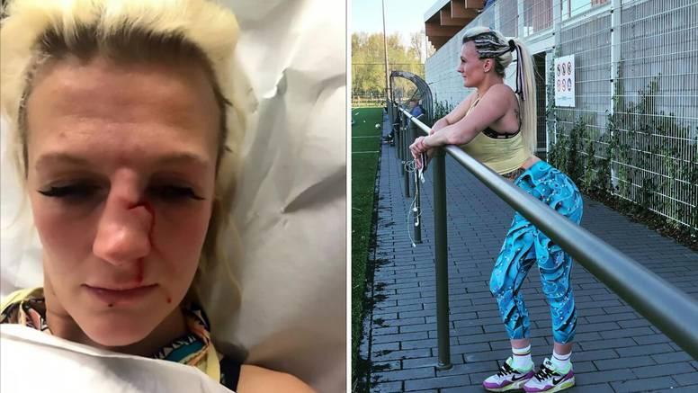 MMA borkinja prekinula je s dečkom, a on joj razbio nos!