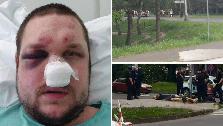 Ivana (32) u Zagrebu pretukli navijači: 'Slomili su mi čeljust'