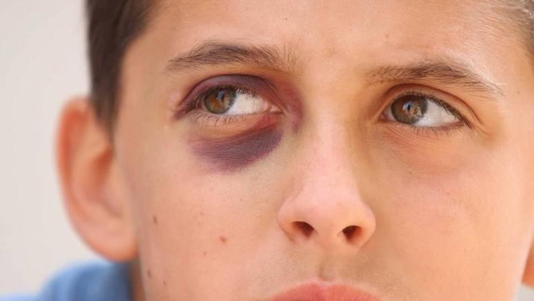 Umalo izgubio oko: Dječak u školi pao i ozlijedio oko