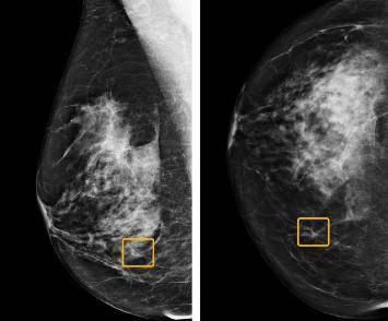 Novi program bolji u dijagnozi raka dojke od samih radiologa