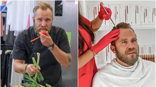 Tajna ljepote splitskog chefa: Krvna plazma za bujniju kosu