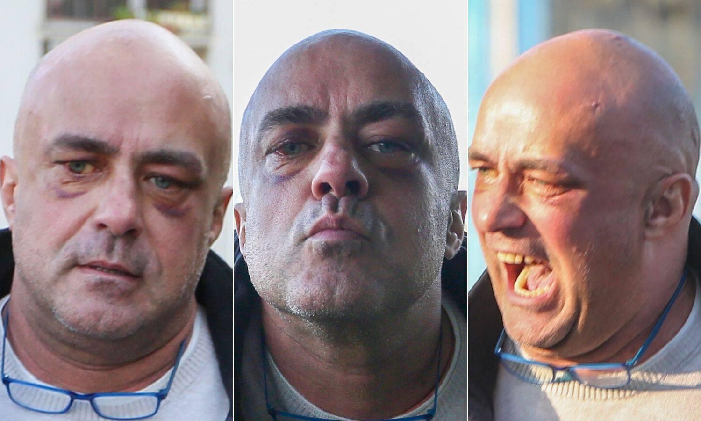Tri lica Leona: Masnice ispod oba oka, divljao je i u bolnici