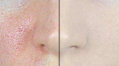 Za predivan ten: Genijalan trik kako brzo suziti i očistiti pore