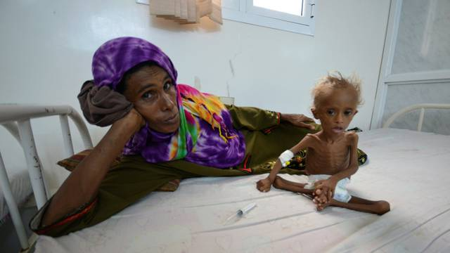 Woman rests on a bed next to her malnourished son at a hospital in the Red Sea port city of Houdieda, Yemen