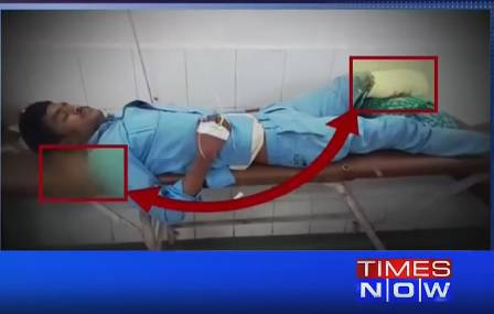Nevjerojatno: U bolnici mu pod glavu stavili - odsječenu nogu!