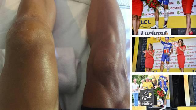Pao, polomio koljeno, vozio još 60 km i evo kako to sad izgleda