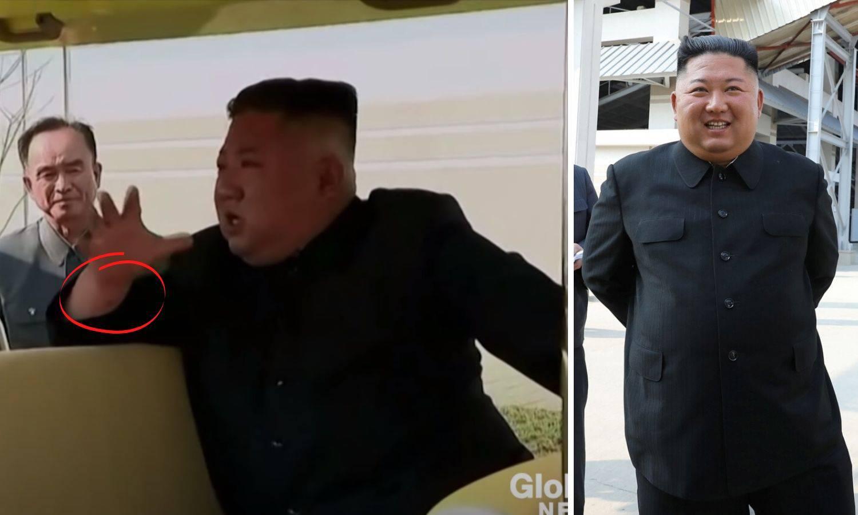 Ožiljak na Kimovom zapešću dokaz je da je bio na operaciji?