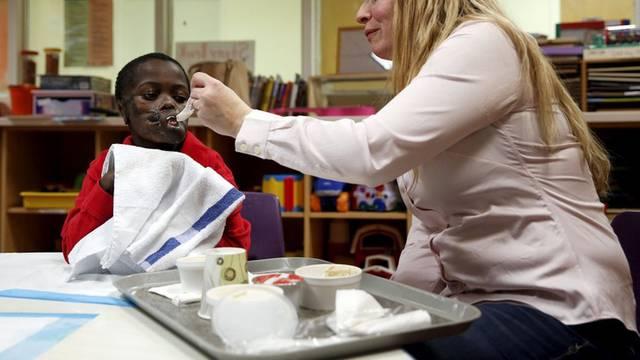Dječaka unakazila čimpanza: Nakon operacije može jesti