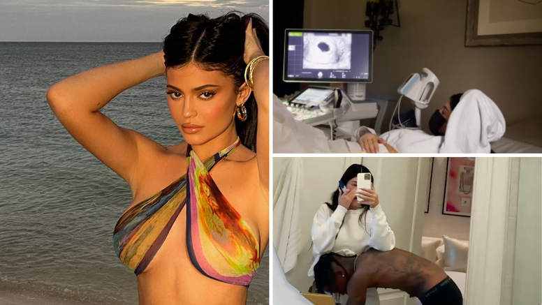 Kylie Jenner objavila snimku s ultrazvuka: Stiže druga beba