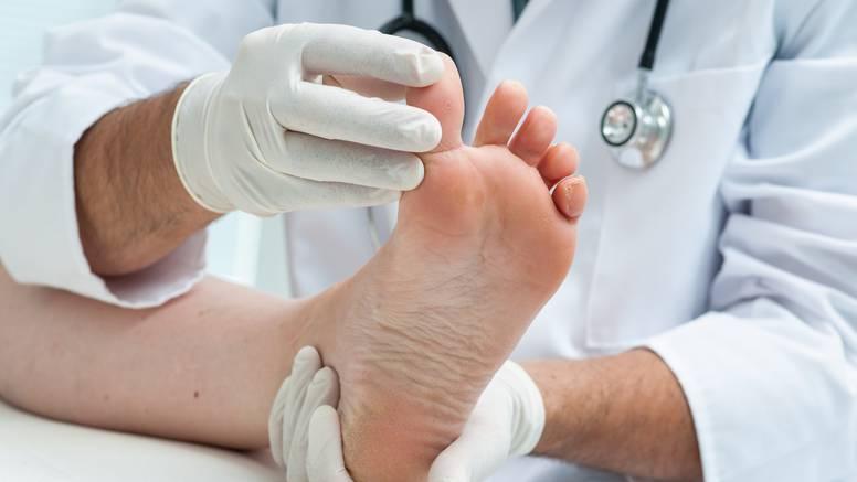 Što nokti na nogama govore o zdravlju: Dobro ih pogledajte