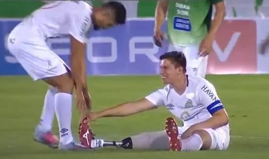 Izgubio je nogu, ne i smisao za humor: Imam grčeve u protezi!