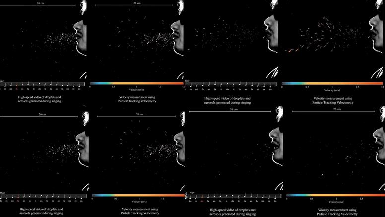 Video pokazuje kako se korona lako proširi među pjevačima