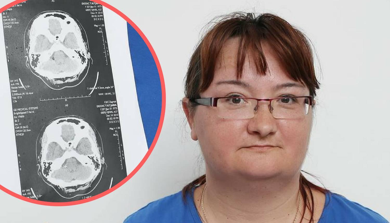 Strava: 'Na pregled čekam čak godinu i pol, a tumor mi raste'