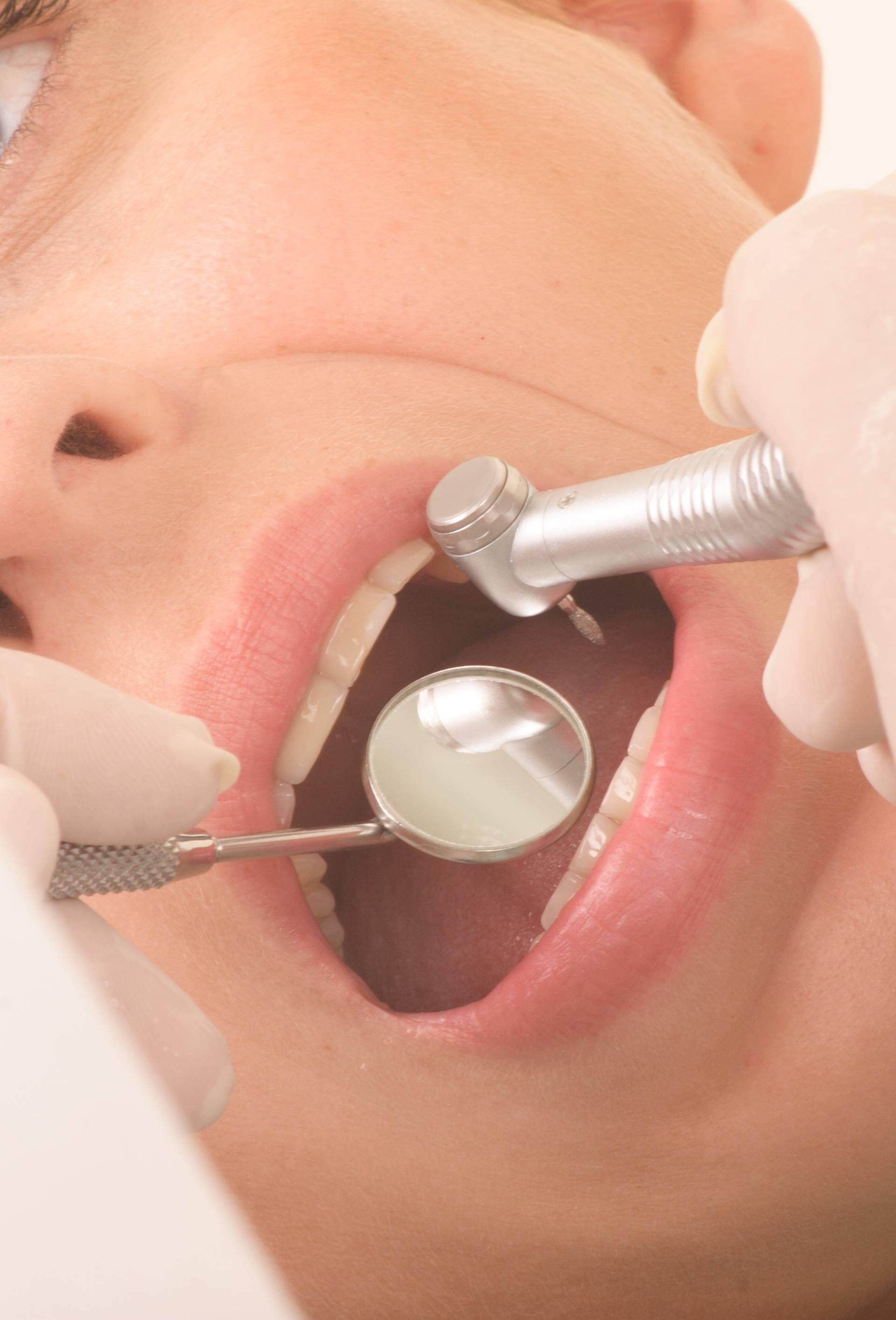 Novi gel koji sam obnavlja zub mogao bi zamijeniti bušenje...