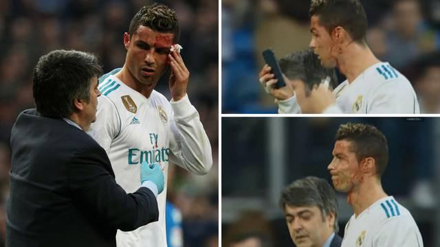 Ronaldo dobio nogom u glavu pa se krvav ogledao u mobitelu