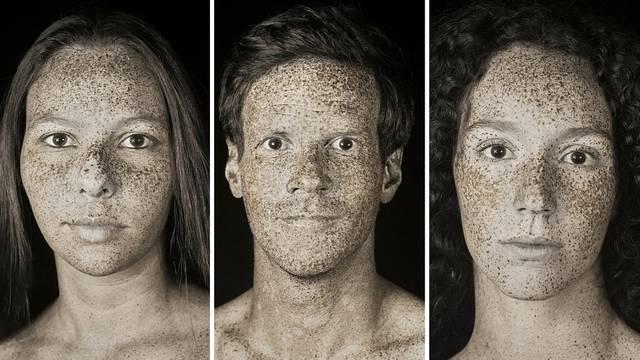 Šokantni UV portreti pokazuju stvarnu štetu od sunca na koži